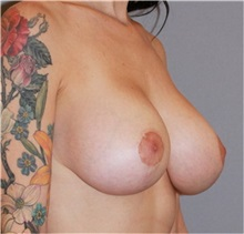 Breast Lift After Photo by Ramin Behmand, MD; Walnut Creek, CA - Case 31600