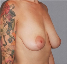 Breast Lift Before Photo by Ramin Behmand, MD; Walnut Creek, CA - Case 31600