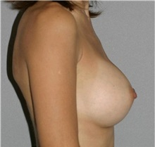 Breast Augmentation After Photo by Ramin Behmand, MD; Walnut Creek, CA - Case 31603