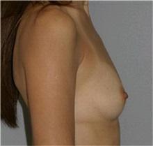 Breast Augmentation Before Photo by Ramin Behmand, MD; Walnut Creek, CA - Case 31603