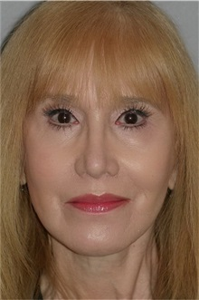 Facelift After Photo by Ramin Behmand, MD; Walnut Creek, CA - Case 31614