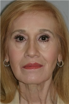 Facelift Before Photo by Ramin Behmand, MD; Walnut Creek, CA - Case 31614