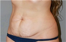 Tummy Tuck Before Photo by Ramin Behmand, MD; Walnut Creek, CA - Case 31707