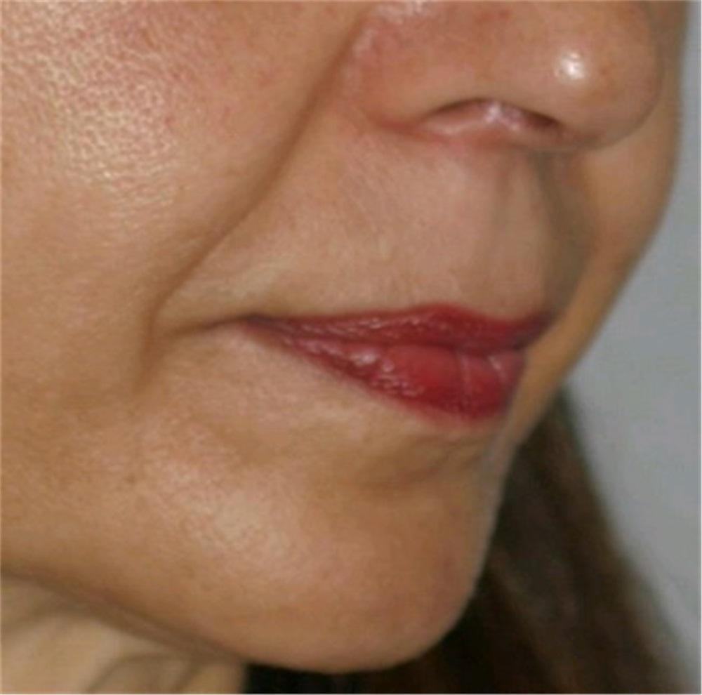 Facial augmentation walnut creek