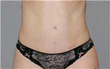 Tummy Tuck After Photo by Ramin Behmand, MD; Walnut Creek, CA - Case 32228