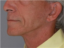 Facelift After Photo by Ramin Behmand, MD; Walnut Creek, CA - Case 32230
