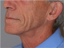 Facelift Before Photo by Ramin Behmand, MD; Walnut Creek, CA - Case 32230