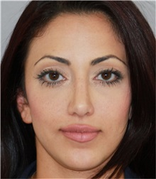 Rhinoplasty After Photo by Ramin Behmand, MD; Walnut Creek, CA - Case 32901