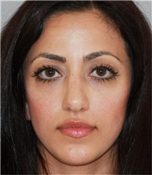 Rhinoplasty Before Photo by Ramin Behmand, MD; Walnut Creek, CA - Case 32901