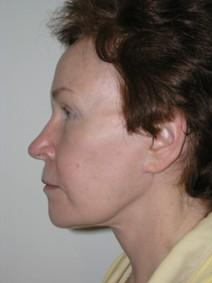 Facelift After Photo by Joseph Fodero, MD; Florham Park, NJ - Case 7285