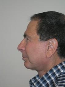 Facelift After Photo by Joseph Fodero, MD; Florham Park, NJ - Case 7286