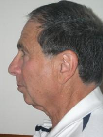 Facelift Before Photo by Joseph Fodero, MD; Florham Park, NJ - Case 7286