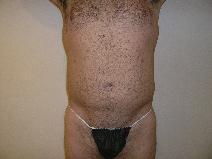Liposuction After Photo by Joseph Fodero, MD; Florham Park, NJ - Case 7677