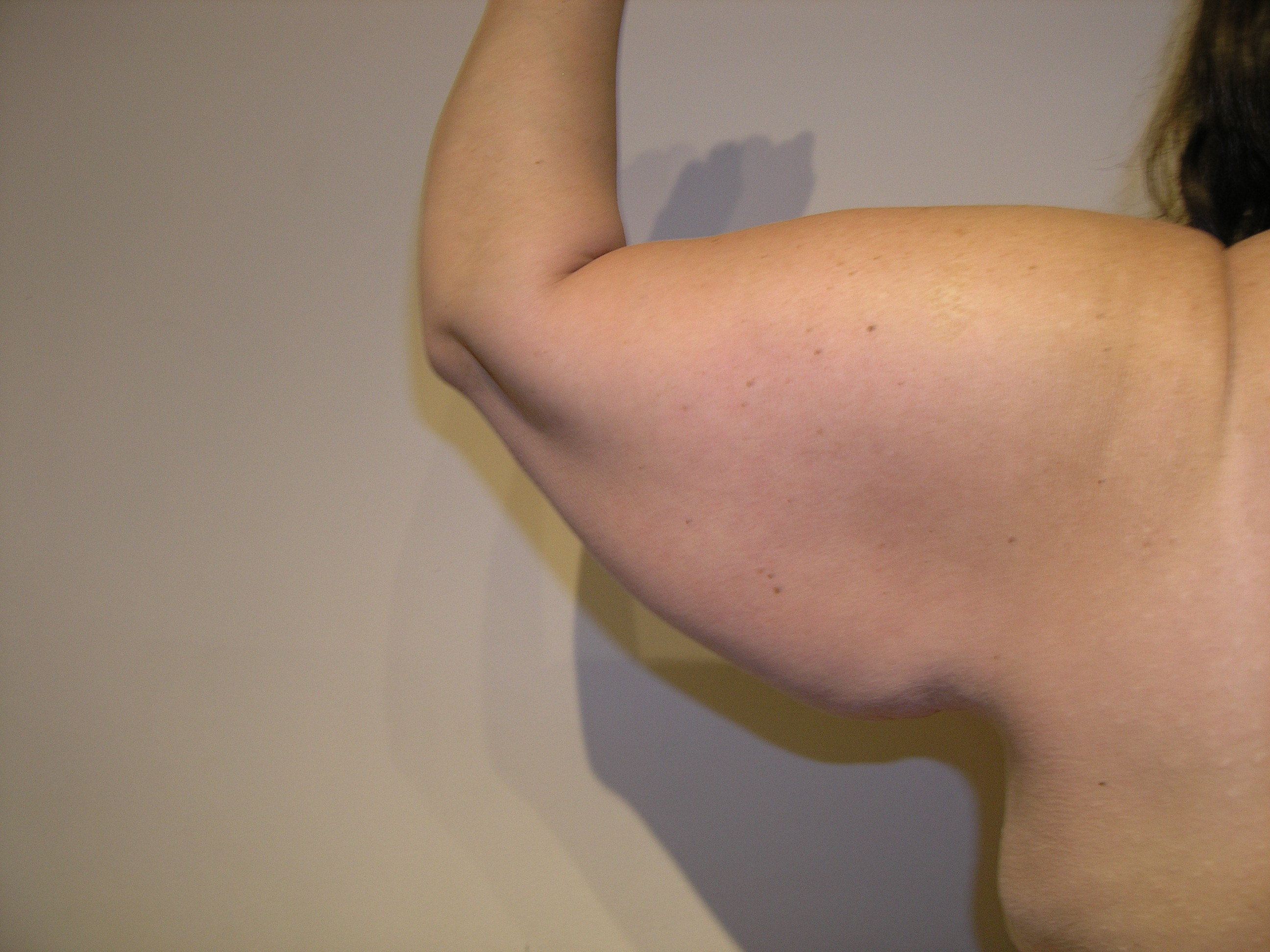 Arm Lift Picture