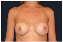 Breast Augmentation After Photo by Michael Law, MD; Raleigh, NC - Case 33257