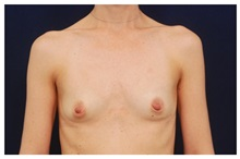 Breast Augmentation Before Photo by Michael Law, MD; Raleigh, NC - Case 33257