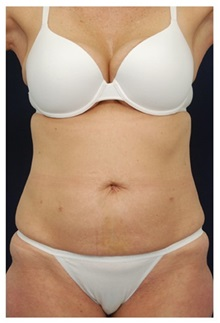 Liposuction Before Photo by Michael Law, MD; Raleigh, NC - Case 33832