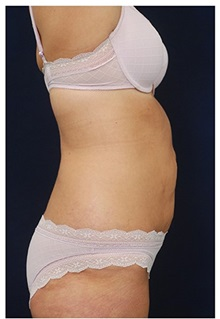 Liposuction After Photo by Michael Law, MD; Raleigh, NC - Case 33832