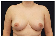 Breast Reduction After Photo by Michael Law, MD; Raleigh, NC - Case 34244