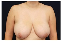 Breast Reduction Before Photo by Michael Law, MD; Raleigh, NC - Case 34244