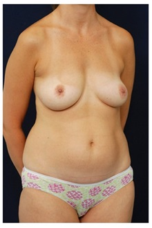 Body Contouring Before Photo by Michael Law, MD; Raleigh, NC - Case 34256