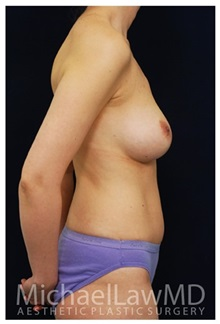 Body Contouring After Photo by Michael Law, MD; Raleigh, NC - Case 34256
