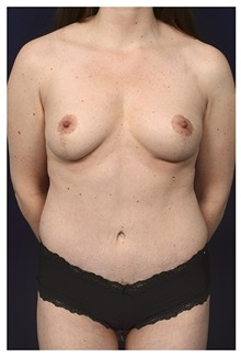 Body Contouring After Photo by Michael Law, MD; Raleigh, NC - Case 34263