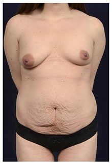 Body Contouring Before Photo by Michael Law, MD; Raleigh, NC - Case 34263