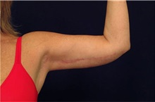 Arm Lift After Photo by Michael Law, MD; Raleigh, NC - Case 35588