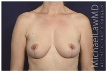 Breast Reduction After Photo by Michael Law, MD; Raleigh, NC - Case 35634