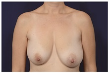 Breast Reduction Before Photo by Michael Law, MD; Raleigh, NC - Case 35634