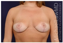 Breast Lift After Photo by Michael Law, MD; Raleigh, NC - Case 35641
