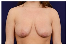 Breast Lift Before Photo by Michael Law, MD; Raleigh, NC - Case 35641