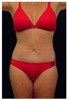 Body Contouring After Photo by Michael Law, MD; Raleigh, NC - Case 35646