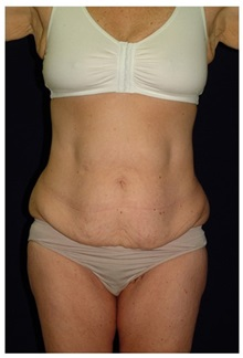 Body Contouring Before Photo by Michael Law, MD; Raleigh, NC - Case 35646