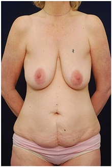 Body Contouring Before Photo by Michael Law, MD; Raleigh, NC - Case 35647