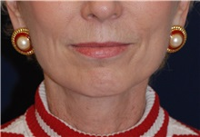 Facelift After Photo by Michael Law, MD; Raleigh, NC - Case 35665