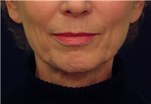 Facelift Before Photo by Michael Law, MD; Raleigh, NC - Case 35665