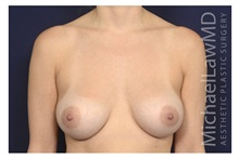Breast Augmentation After Photo by Michael Law, MD; Raleigh, NC - Case 35715