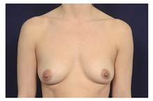 Breast Augmentation Before Photo by Michael Law, MD; Raleigh, NC - Case 35715