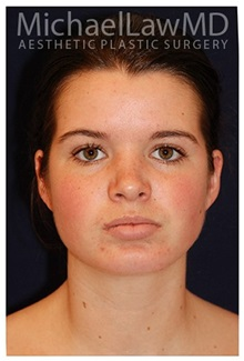 Chin Augmentation After Photo by Michael Law, MD; Raleigh, NC - Case 35719