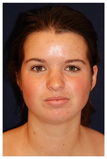 Chin Augmentation Before Photo by Michael Law, MD; Raleigh, NC - Case 35719