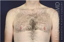 Male Breast Reduction After Photo by Michael Law, MD; Raleigh, NC - Case 35726