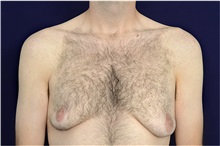 Male Breast Reduction Before Photo by Michael Law, MD; Raleigh, NC - Case 35726