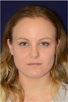 Dermal Fillers Before Photo by Michael Law, MD; Raleigh, NC - Case 35741