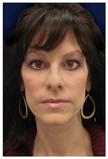 Dermal Fillers Before Photo by Michael Law, MD; Raleigh, NC - Case 35747