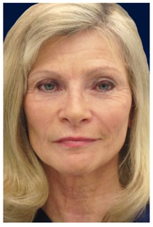 Dermal Fillers After Photo by Michael Law, MD; Raleigh, NC - Case 35748