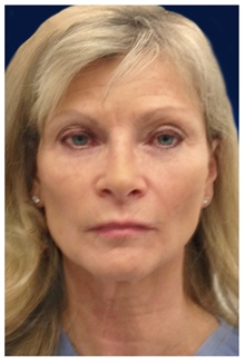 Dermal Fillers Before Photo by Michael Law, MD; Raleigh, NC - Case 35748