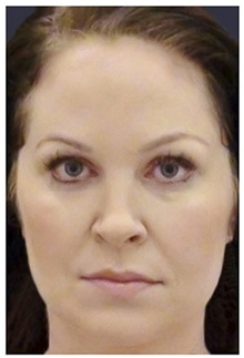 Dermal Fillers After Photo by Michael Law, MD; Raleigh, NC - Case 35749