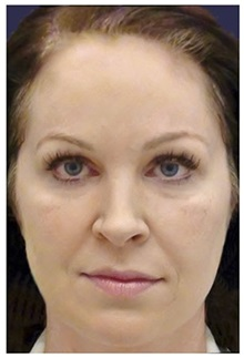 Dermal Fillers Before Photo by Michael Law, MD; Raleigh, NC - Case 35749